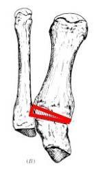 TMT Arthrodese nach Lapidus1